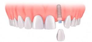 مركز زراعة اسنان متخصص في تركيبات الاسنان